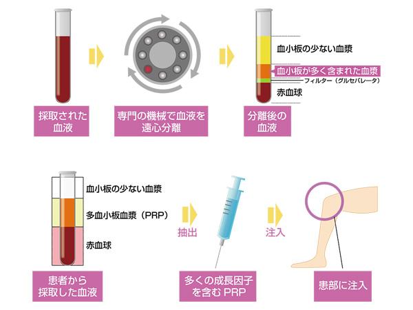 先進医療-PRP-療法